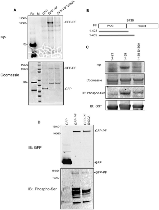 Cdk4 phosphorylates PAX3-FOXO1 at Ser430in vitro and in vivo.A) In vitro kinase assay using GFP or GFP-PAX3-FOXO1 (GFP-PF; wild-type or S430A mutant) pulled down from transfected Rh30 cells. Top panel: 32P Phospho-image. Bottom panel: protein substrates revealed by Coomassie blue staining. B) Schematic diagram of three GST-PF fusion proteins (showing only the PAX3-FOXO1 portion). PF, full length PAX3-FOXO1; 1–423, the N-terminal 423 residues of PAX3-FOXO1; 1–459, N-terminal 459 residues of PAX3-FOXO1; S430, Serine 430; PAX3, the PAX3 portion of PAX3-FOXO1; FOXO1, the FOXO1 portion of PAX3-FOXO1. C) In vitro kinase assay using bacterially expressed PAX3-FOXO1. From top to bottom panel: 32P Phospho-image (32P); protein substrates revealed by Coomassie blue staining (Coomassie); Western blot using phosphor-ser CDKs substrate antibody (IB: Phospho-Ser); and Western blot using anti-GST monoclonal antibody (IB: GST). D) Detection of phosphorylation using GFP or GFP-PF (wild-type or S430A mutant) proteins pulled down from transfected Rh30 cells. Top panel: Western blot using anti-GFP monoclonal antibody; Bottom panel: Western blot using phosphor-ser CDKs substrate antibody. Rb, positive control for Cdk4 activity; M, protein marker indicating molecular weight (kD).