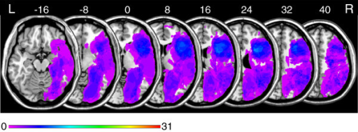 Overlay lesion plots of all thirty-one patients in MNI space. Eight axial slices. The number of overlapping lesions is illustrated by colour, from violet (N = 1) to red (N = 31). Maximum overlap occurred in the right frontal lobe. The area coloured light blue indicates overlapping lesions in twelve patients (39% lesion overlap). Numbers indicate MNI coordinates.