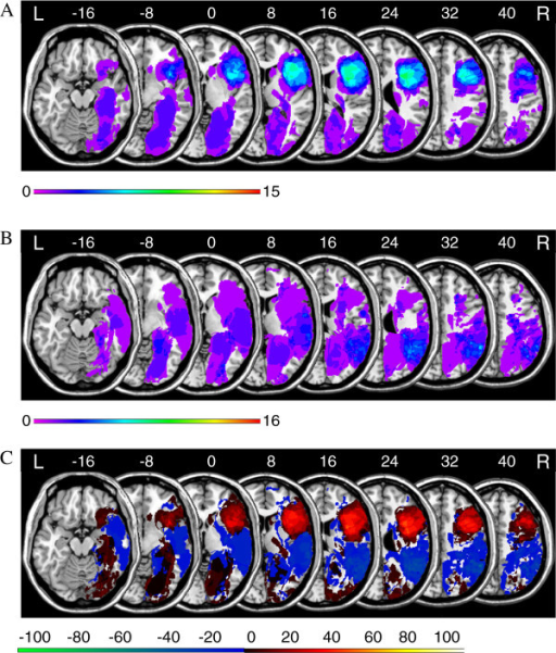 Anatomical results obtained from the lesion subtraction analysis on the FAB global composite score. A. Overlay lesion plots for those patients who achieved a FAB global composite score below the median (Mdn = 16; N = 15). The number of overlapping lesions is illustrated by colour, from violet (N = 1) to red (N = 15). B. Overlay lesion plots for those patients who achieved a FAB global composite score equal to or above the median (Mdn = 16; N = 16). The number of overlapping lesions is illustrated by colour, from violet (N = 1) to red (N = 16). C. Overlay plots of the subtracted superimposed lesions of the patients who achieved a FAB global composite score below the median minus patients who achieved a FAB global composite score equal to or above the median. Colours code increasing frequencies from dark red (difference 1% to 20%) to white-yellow (difference 81% to 100%), indicating regions damaged more frequently in patients who achieved a FAB global composite score below the median. The colours from dark blue (difference -1 to -20%) to light green (difference -81 to -100%) indicate regions damaged more frequently in patients who achieved a FAB global composite score equal to or above the median.