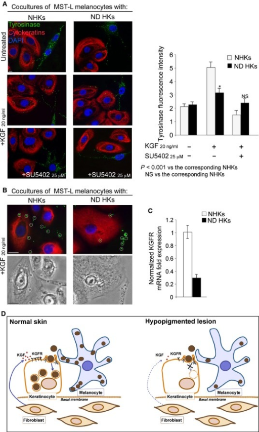 Decreased melanosome uptake ability and KGFR expression in keratinocytes from ND lesion.(A and B) Cocultures of MST-L melanoma cells with normal humankeratinocytes (NHKs) or with keratinocytes derived from the ND lesion (ND HKs) were treated withKGF. Immunofluorescence (A and B) and phase-contrast (B)images show that the tyrosinase-positive dots in ND HKs upon KGF treatment are strongly reduced withrespect to those in NHKs (A and B, circles) and that the addition ofSU5402 abolishes the KGF effect; bars: 10 μm. (C) Real-time RT-PCR reveals adecreased KGFR mRNA expression in ND HKs compared with NHK control cells. (D) Schematicdrawing showing the effects of decreased levels of KGF and KGFR on melanosome transfer inhypopigmented lesions.