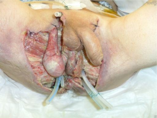 The wound care: debridement – shown is the 11th day post-surgery.