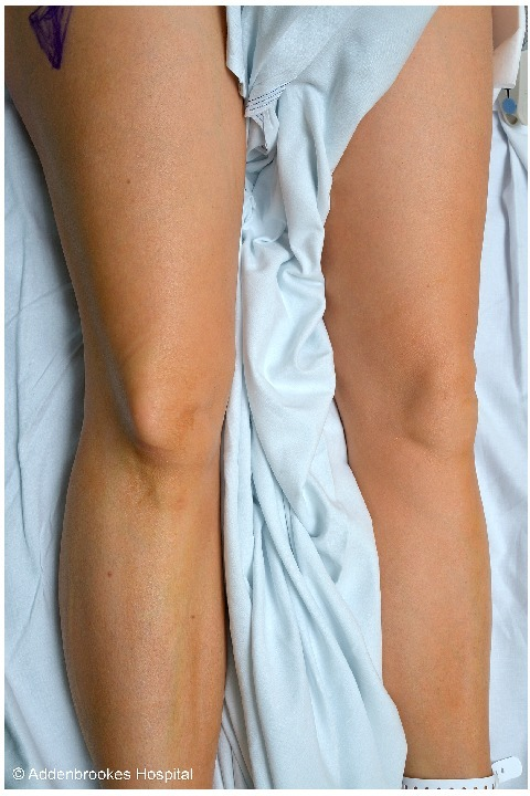 "Anterior-posterior view of the patients' knee with the characteristic ""dorsal fin"" appearance of tenting of the skin over the laterally displaced patella."