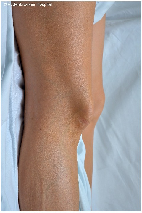 Lateral view of the patients' knee highlighting tenting of the soft tissues over the patella.