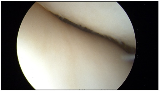 Image from arthroscopy demonstrating no osteochondral damage to the patellofemoral region.