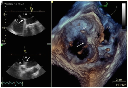 Real-time 3D echocardiography during transseptal puncture. The tip of the catheter (arrow) is passing from the right atrium (RA) to the left atrium (LA), through interatrial septum.