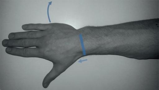 Scapholunate Ligament Dorsal Portion Scanning Tec Open I