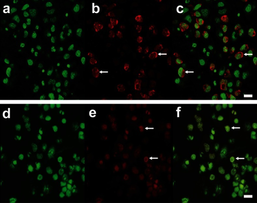 AO staining in CN treated with glucose. a–c Representative images of control CN and d–f and CN treated with 25 mM glucose for 72 h. Nuclei are stained; green and red puncta represent lysosomes (white arrows). Scale bar represents 25 μm