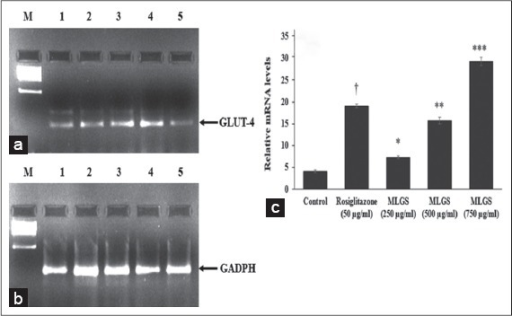 Effect of the methanolic leaf extract of Gymnema sylvestre (MLGS) on glucose transport-4 transcripts in L6 myotubes. (a and b) - M: Ikbp marker, Lane 1: 250 μg/ml MLGS, Lane 2: 500 μg/ml MLGS, Lane 3: 750 μg/ml MLGS, Lane 4: 50 μg/ml rosiglitazone, Lane 5: Control. (c) The values are x ± standard error of mean (n = 3) of independent experiments, means of various groups were statistically compared by ANOVA followed by Tukey's multiple comparison test using Graph Pad version 4.0. †P < 0.001 corresponds to rosiglitazone versus control; *P < 0.05, **P < 0.01, ***P < 0.01 corresponds to MLGS versus control