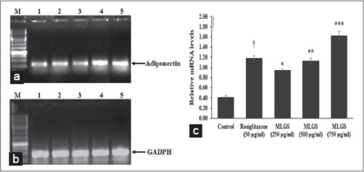 Effect of the methanolic leaf extract of Gymnema sylvestre (MLGS) on Adiponectin transcripts in 3T3 L1 cell lines. (a and b) - M: Ikbp marker, Lane 1: Control, Lane 2: 50 μg/ml rosiglitazone, Lane 3: 250 μg/ml MLGS, Lane 4: 500 μg/ml MLGS, Lane 5: 750 μg/ml MLGS, (c) The values are x ± standard error of mean (n = 3) of independent experiments, means of various groups were statistically compared by ANOVA followed by Tukey's multiple comparison test using Graph Pad version 4.0. †P < 0.001 corresponds to rosiglitazone versus control; *P < 0.05, **P < 0.01, ***< 0.01 corresponds to MLGS versus control