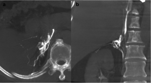 A 60-year-old man with primary aldosteronism (PA) and a right adrenal nodule.The right adrenal gland was opacified on a maximum intensity projection image on Dyna computed tomography in the transverse plane (a) and coronal plane (b). Adrenal venous sampling was successful and the lateralisation examination indicated bilateral PA.