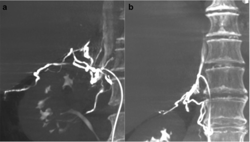 A 57-year-old man with primary aldosteronism and bilateral adrenal nodules.(a) On Dyna computed tomography maximum intensity projection imaging in the coronal plane, the renal capsular vein was opacified with the venous orifice at the T11/12 intervertebral level. (b) After adjustment of the catheter position, the right adrenal vein was opacified with the venous orifice at the mid T11 vertebral level.
