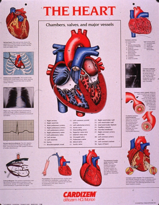 <p>Predominantly white poster with red and black lettering.  Title at top of poster.  Dominant visual image is a cutaway illustration revealing the chambers, valves, and major vessels of the heart.  Smaller illustrations along the sides of the poster depict the heart, methods of examining the heart and cardiac functioning, pacemakers, angioplasty, coronary artery bypass, clogged arteries, and angiography.  Explanatory text accompanies the illustrations. Note below illustrations advertises a drug used to treat high blood pressure and control chest pain.  Publisher information in lower right corner.</p>