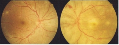 Ophthalmoscopic appearance of outer retinitis in the right eye (first visit day). Multifocal deep retinal opacifications and small retinal hemorrhage are visible in the left eye. Some white spots can be seen on the posterior pole of the right eye.