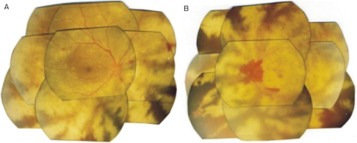 Subsequent fundus photographs of each eye. (A) Extensive deep retinal white opacification sparing perivascular area is visible. Note the retinal and vitreous hemorrhage around optic nerve. These findings are consistent with PORN in the left eye, except for that hemorrhage. Additional inferior retinal and choroidal detachments were found. (B) Multifocal deep retinal lesions are seen with the central macula showing a cherry-red spot in the right eye. This is consistent with PORN.