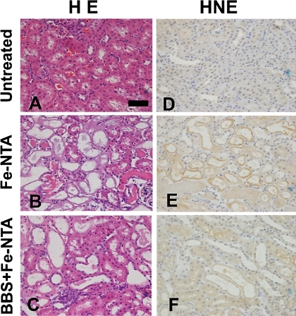investigation of serum enzyme activity in renal tumors Although serum concentrations are low in most patients with solid tumors, patients with lymphomas or t-cell leukemia sometimes have elevated concentrations due to dysregulation of the 1-alpha-hydroxylase enzyme present in tumor cells.