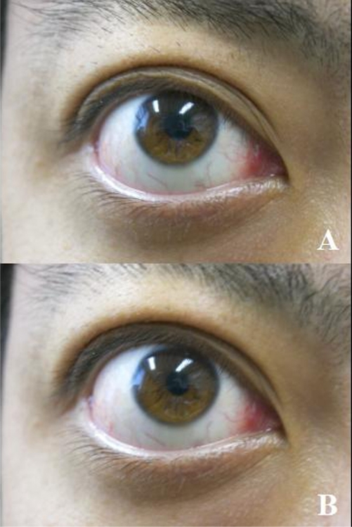 Double motion sign of the upper eyelid. A) Upper eyelid partially covers the upper part of the cornea on a slight upward gaze. B) The upper eyelid is still in the same position, but the eye moves downward, exposing the sclera between the upper eyelid and the cornea.