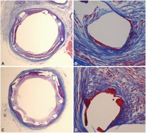The Carstair fibrin stain of the low- and high-power fields (magnitude, ×20, ×400) of fibrin infiltration in dual coating stent (A and B) and control stent (C and D).