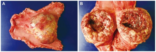 Gross findings. (A) It showed malignant gastrointestinal stromal tumor (GIST) (>10 cm), subserosal, exophytic polypoid type at the stomach body along the lesser curvature. (B) Cut section showed malignant GIST (>10 cm) with solid and cystic, hemorrhagic and necrotic, fish-flesh, sarcomatous cut surfaces.