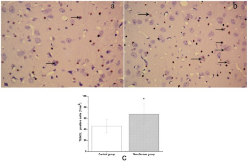 Sevoflurane induced apoptosis of cells in the hippocampus of aged rats.Apoptosis was examined by the TUNEL method. Upper: Photomicrographs of TUNEL-positive cells. (a) Control group. (b) Sevoflurane group. (c) Number of TUNEL-positive cells in each group. Data are presented as mean ± SD. *P<0.05, vs control group.