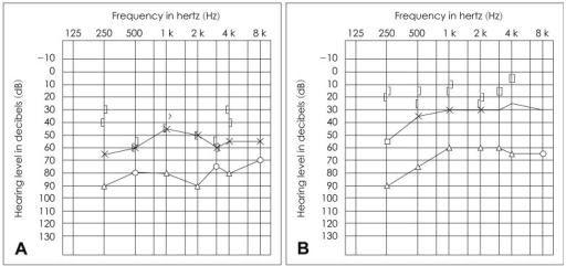 Results of preoperative pure tone audiometry (PTA). A