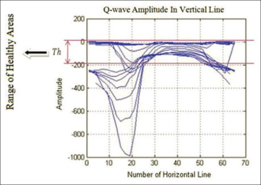 Applying threshold rule on the Q-wave amplitude for Case #1 as the first patient