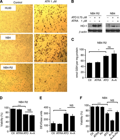 Loss of ATRA-mediated Nrf2 inhibitory mechanism in the NB4-R2 retinoic acid-resistant cell line. (A) HL60, NB4 and NB4-R2 cells were treated for 3 days with ATRA 1 μM. Differentiation was determined by the NTB reduction assay as indicated in Materials and Methods. (B) NB4-R2 and NB4 cells were treated with ATO (0.75 μM) in the presence of ATRA (1 μM) for 24 h. After treatment, total protein extracts were prepared and HO-1 and β-actin protein levels were assessed by immunoblotting. Illustration of a typical western blot is shown. (C) GSH content was measured in NB4-R2 cells treated with ATO (0.75 μM) in the presence of ATRA (1 μM) for 24 h. Cell survival was assessed in NB4-R2 cells treated with ATO (0.75 μM) in the presence of ATRA (1 μM) for 24 h using (D) DEVDase activity or (E) the trypan blue exclusion assays. (F) NB4 cells were incubated with Ro-41-5351 (0.5 μM) for 24 h and then treated with ATRA (1 μM) and ATO (0.75 μM) for additional 24 h. Cell extracts were collected and cell survival was assessed by using the trypan blue exclusion assay. Statistically significant differences with respect to the control condition are indicated (means±s.e.m.; n=3; *P⩽0.05, **P⩽0.01, ***P⩽0.001). Ctl, control.