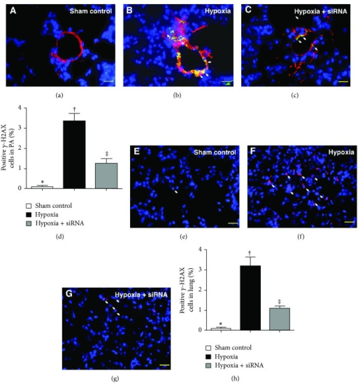 Immunofluorescent (IF) staining for γ-H2AX+ cells in medial layer of pulmonary arterioles (PA) and lung parenchyma by day 28 after hypoxia-induced pulmonary arterial hypertension (PAH) (n = 10). ((a) to (c)) Identification of γ-H2AX+ cells in PA (white arrow) using IF double staining (i.e., α-SMA-γ-H2AX) in the three groups (400x). (d) ∗ versus other groups with different symbols (∗, †, ‡), P < 0.0001. ((e) to (g)) Identification of γ-H2AX+ cells in lung parenchyma (white arrow) with IF double staining (i.e., α-SMA-γ-H2AX) in the three groups (400x). (h) ∗ versus other groups with different symbols (∗, †, ‡), P < 0.0001. The scale bars in right lower corners represent 20 μm. Blue fluorescence indicates DAPI-stained nuclei. Statistical analysis in (d) and (h) using one-way ANOVA, followed by Bonferroni multiple comparison post hoc test. Symbols (∗, †, ‡) indicate significance (at 0.05 level).