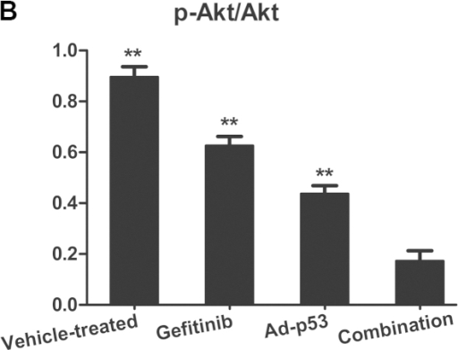 Combination of Ad-p53 and gefitinib suppresses the Akt pathway in MDA-MB-468 cells and increases the activity of caspase cascade protein. Cells were treated with Ad-p53 (MOI of 100), gefitinib (3 μM), alone or a combination for 48 h. Cell lysates were analyzed via western blotting using the indicated antibodies. GAPDH was used as a loading control. (A) p53 and EGFR expression was detected in the MDA-MB-468 cells by western blotting. Ad-p53 and gefitinib in combination significantly downregulated p-Akt and upregulated caspase-9 and cleaved caspase-3. ERK and p-ERK showed little change among the four groups. (B) Relative expression of p-Akt, (C) caspase-9 and (D) cleaved caspase-3 was evaluated by ANOVA. Tukey's multiple comparison was applied to compare two subsequent samples. Data represent means ± SEM from three independent experiments. **P<0.01. Ad-p53, recombinant human p53 adenovirus; MOI, multiplicity of infection; EGFR, epidermal growth factor receptor; p-Akt, phosphatidylinositol-3 kinase; ERK, extracellular signal-regulated kinase; p-ERK, phosphorylation of ERK.