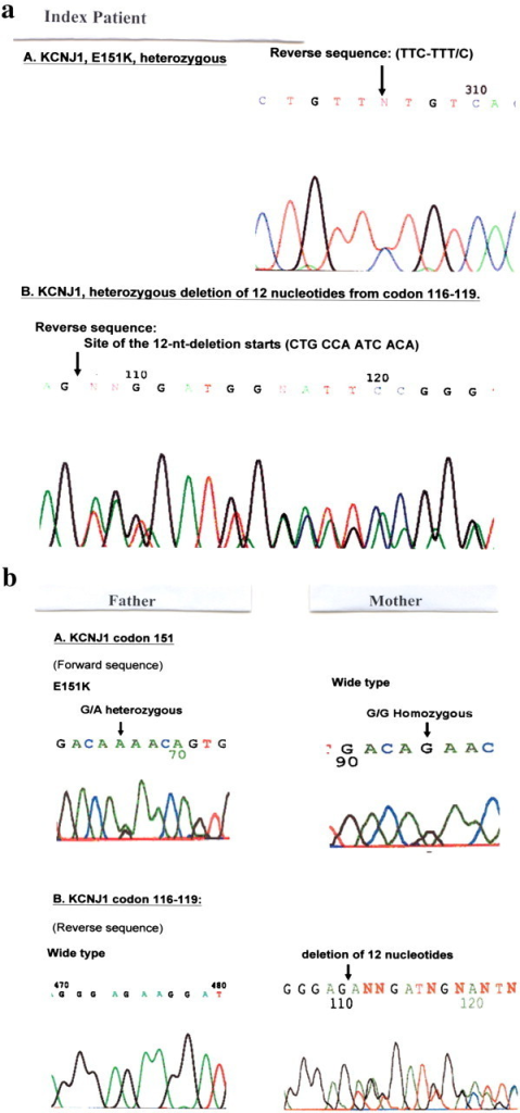 (a) Sequencing analysis of KCNJ1 gene: genomic DNA was used for polymerase chain reactions (PCRs) of KCNJ1 gene Exons 1–5 and the adjacent introns. The PCR products were purified and then sequenced using the BigDye Terminator v1.1 Cycle Sequencing Kit (Appliedbiosystems) and run on an Applied Biosystems 377 Genetic analyzer. The data were collected and analysed using Applied Biosystems sequencing analysis software. The heterozygous alleles were resolved by cloning the PCR products into TOPO vectors, sequencing of multiple clones were performed. Results of genetic study of the index patient confirmed two novel heterozygous mutations in the Exon 5 of KCNJ1. One heterozygous G-A mutation, was identified in Exon 5 of KCNJ1 (GAA-AAA), resulted in amino acid change from glutamic acid to lysine at codon 151 (E151K), Glu151Lys. Another heterozygous in-frame deletion of 12 nucleotides, which caused in-frame deletion of four amino acids (ANHT) from codon 116 to 119. These two mutations were located in the channel core regions and were highly suggestive of altering the channel properties resulting in BS in the affected patient. (b) Mother: heterozygous in-frame deletion of 12 nucelotides resulting in deletion of four amino acids (ANHT) from codon 116 to 119 was identified. Wild-type sequence was at codon 151. Because of such large in-frame deletion of four amino acids, this mutation is considered to be deleterious. Father: a heterozygous mutation at codon 151 was found (GAA-AAA) and resulted in amino acid change from glutamic acid to lysine (E151K). Wild-type sequence was at codon 116–119. In E151K missense mutation, among mammal species, the amino acid at codon 151 is highly conserved with either E or D and both are negatively charged residues. The mutation changes it to a positively charged residue. It is very likely to be deleterious. Population screening showed that the mutation E151K was not found in the screening of 160 chromosomes in the population. Such observations indicated that E151K is not a polymorphism in our population and supports that this is a disease-related mutation.