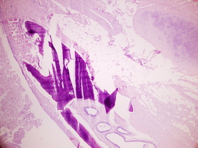 Mature teratoma, HE stain (100×).