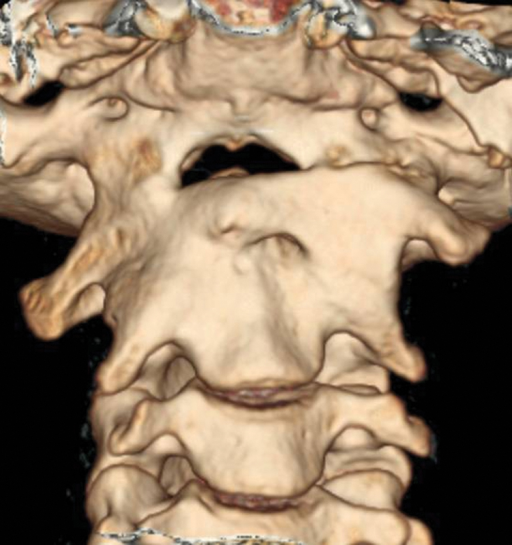 Six months' follow-up computed tomography three-dimensional reconstruction showing occiput-to-C2 fusion.