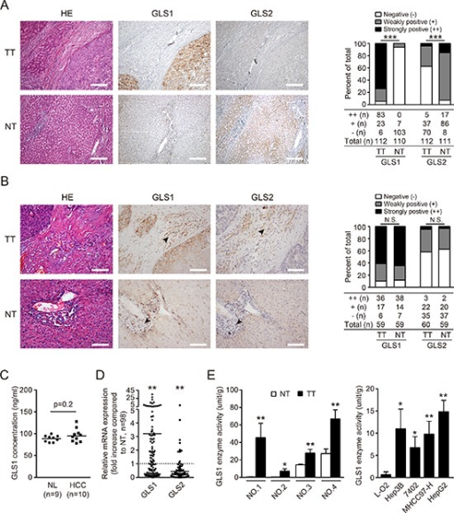 Expression and biodistribution of GLS1 and GLS2 in hepatocellular carcinoma(A) GLS1 and GLS2 were detected by immunohistochemical staining in 112 tumor tissues (TT) and paired non-tumor tissues (NT) from HCC patients. Representative staining of GLS1 and GLS2, and corresponding hematoxylin and eosin (HE) staining are shown (left panel). Bars = 200 μm. The expression and intensity of total samples were evaluated and classified into three grades: ++ strongly positive, + weakly positive; − negative (right panel). (B) The expression and distribution of GLS1and GLS2 in mesenchymal cells (black arrows) were evaluated by immunohistochemical staining in 60 paired TT and NT from HCC patients comprising a random subset of the 112 paired TT and NT samples from panel A. Representative staining of GLS1 and GLS2, and corresponding HE staining are shown (left panel). The expression and intensity of total specimens were evaluated (right panel). Bars = 100 μm. (C) GLS1 concentration in serum obtained from 9 normal healthy donors (NL) and 10 HCC patients was determined by ELISA. (D) Expression of GLS1 and GLS2 in 98 HCC tumors and paired adjacent non-tumor tissues was determined by quantitative RT-PCR. (E) Enzyme activity of GLS1 in TT and paired NT (n = 4, left panel), and in a non-malignant hepatic cell line (L-O2) and HCC cell lines (Hep3B, 7402, MHCC97-H, HepG2) (right panel); *p < 0.05, **p < 0.01, ***p < 0.001, N.S. not significant.