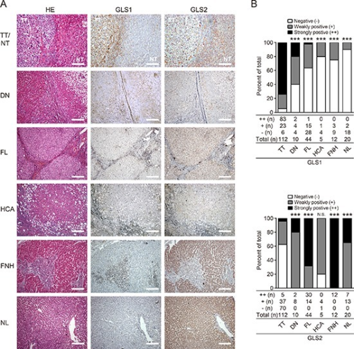 Expression and biodistribution of GLS1 and GLS2 in HCC and other liver diseases(A) HE and immunohistochemical staining for GLS1 and GLS2 in HCC tumor tissues (TT, n = 112), dysplastic nodule tissues (DN, n = 10), fibrotic liver tissues (FL, n = 44), hepatocellular adenoma tissues (HCA, n = 5), focal nodule hyperplastic tissues (FNH, n = 12), and normal liver tissues (NL, n = 20). Bars = 200 μm. (B) Quantitation of expression intensity and frequency of GLS1 (upper panel) and GLS2 (lower panel). Intensity was categorized into three grades: negative (−), weakly positive (+), and strongly positive (++); ***p < 0.001, N.S. not significant.