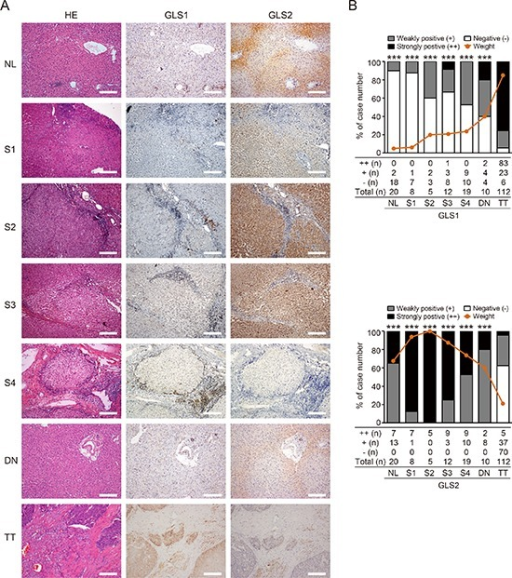 Glutamine metabolism is switched from GLS2 to GLS1 during oncogenic transformation to HCC(A) HE and immunohistochemical staining for GLS1 and GLS2 in normal liver tissues (NL, n = 20), fibrotic liver tissues from Grade I to V (S1–S4, n = 44), dysplastic nodule tissues (DN, n = 10), and HCC tumor tissues (TT, n = 112). Staining of representative sections are shown. Bars = 200 μm. (B) Quantitation of intensity and frequency of GLS1 (upper panel) and GLS2 (lower panel) expression. The intensity was scored as 2 (strongly positive), 1 (weakly positive), or 0 (negative). Brown lines indicate aggregate positivity in different tissues, calculated according to the frequency and intensity: ∑ Frequency × Intensity/2. ***p < 0.001.