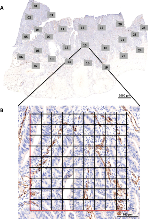 (A) A whole slide image (WSI) of a CD31-stained colorectal carcinoma sample was taken with Pannoramic SCAN. Labeled callout boxes within the WSI display indicate annotations that were semi-automatically created with AutoTag. Subsequently, snapshots for each point annotation were made with AutoSnap. Scale bar = 2000 μm. (B) The resulting snapshot of region of interest #15 is displayed. The digital grid was generated with Adobe Photoshop®. Scale bar = 100 μm.