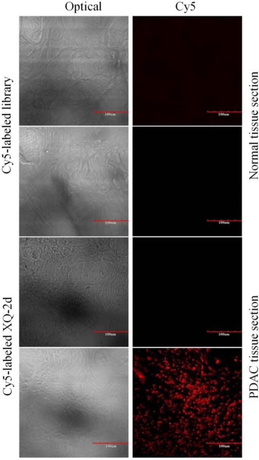 Representative florescence images of PDAC tissue sections and normal tissue sections stained with Cy5-labeled aptamer XQ-2 (250 nM) or Cy5-labeled library (250 nM). Scale bar = 100 µm.