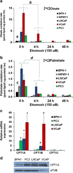 Lipid oxidation is abundant in prostate cancer cells and interrupted by etomoxir. a) The effect of etomoxir (150 μM) on the [14C]oleic acid oxidation rate at the indicated times. Benign cells are BPH-1 and WPMY-1. a Benign (n = 6) vs. PCa (n = 9) without treatment, t test—P = 0.004. b Effect of 4 h treatment on oleate oxidation in PCa cells. ANOVA P < 0.001, post hoc Tukey's: LNCaP (P < 0.001), VCaP (P < 0.001), PC3 (P = 0.002). b) Effect of etomoxir on [14C]palmitate oxidation. c Benign (n = 6) vs. PCa (n = 9) with no treatment, t test—P = 0.006. d Effect of 4-h treatment on palmitate oxidation in PCa cells. ANOVA P < 0.001, post hoc Tukey's: LNCaP (P = 0.001), VCaP (P = 0.001), PC3 (P < 0.001). c) CPT1 isoform expression in PCa cells and BPH-1 benign line. Post hoc tests, *P ≤ 0.03 compared with BPH-1. #P ≤ 0.002 compared with BPH-1. d) CPT1A Western blot of cell lines examined. αTUB = tubulin loading control.