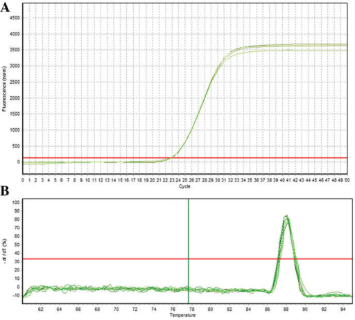 Quantification curve and melting curve for GAPDH. (A) GAPDH amplification curve. (B) GAPDH melting curve.