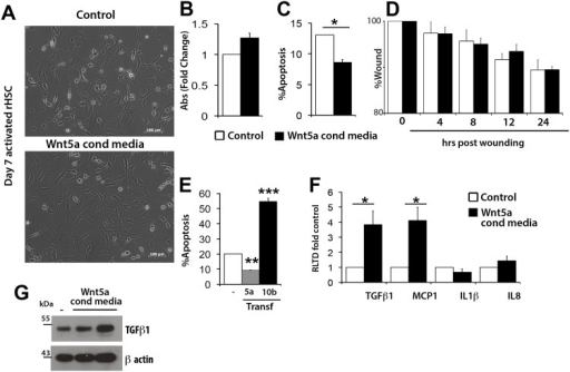 Wnt5a stimulus influences HSC survival and expression of profibrotic markers in Kuppfer cells.(A) Rat aHSCs were treated with control or Wnt5a conditioned medium and visualised by bright field microscopy. (B) Proliferation was assessed by MTT assay (C) Acridine Orange staining was used to quantify apoptotic response upon serum withdrawal (D) Migratory potential was assessed by scratch wound assay (E) Apoptotic response in LX-2 cells overexpressing Wnt 5a orWnt10b was also assessed by acridine orange staining in standard culture conditions (10% FCS) or serum free conditions. Data presented as number of apoptotic cells as percentage of total cell number. (F) qRT-PCR for profibrotic markers in control or Wnt5a conditioned medium treated rat Kuppfer cells, (n = 3) (G) Western Blot for TGFB1 expression in control or Wnt5a conditioned medium treated Kuppfer cells. qRT-PCR results are expressed as fold change normalised to control ± SEM *p<0.05, **p<0.01, ***p<0.001 (Student's t-test).