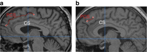 PCS measurement for two example images.The paracingulate sulcus (PCS), marked in red, lies dorsal and parallel to the cingulate sulcus (CS), itself dorsal to the corpus callosum. (a) In this image, the PCS is continuous and is measured from its origin in the first quadrant (indicated by the cross-hairs at y=0 and z=0) to its end. (b) In this example, the PCS appears less distinct; it is measured from the point at which it runs in a posterior direction, dorsal to the cingulate sulcus.