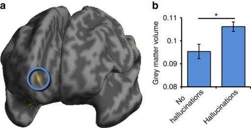 Grey matter volume differences measured with voxel-based morphometry.(a) Significantly greater grey matter volume in 79 patients who experienced hallucinations than in 34 patients without hallucinations in the mPFC region of interest in the vicinity of the anterior PCS (circled), rendered on an inflated canonical cortical surface, viewed from the front. (b) Grey matter volume in PCS region significantly differentiates patients with schizophrenia as a function of hallucination status, Z=2.82; P=0.036 (small volume corrected). Error bars represent standard error of the mean.