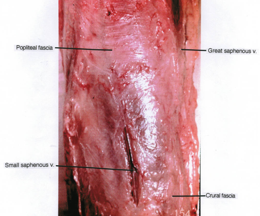 popliteal fascia; small saphenous vein; great saphenous | Open-i