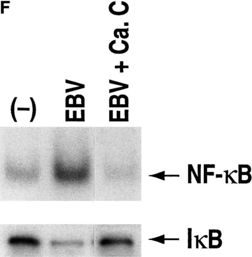 NF-κB induction by CD21 ligands. (A) NF-κB activation by EBV. Nuclear extracts from purified resting B cells incubated with B95-8 EBV  for the designated times were analyzed by EMSA for ability to bind to an NF-κB consensus probe. (B) Specificity of NF-κB binding. Homologous wild  type (wt) and mutant (mut) NF-κB probes were evaluated for ability to inhibit binding of the NF-κB consensus probe by EMSA. (C) NF-κB activation  by C3dg. Nuclear extracts from purified resting B cells incubated with microbeads coated with C3dg or BSA were evaluated for the presence of activated  NF-κB by EMSA. (D) CD21 dependence of NF-κB activation. Purified resting B cells were incubated with soluble gp105 or OKB7 for 1 h, or with the  same amounts of gp105 (EBV + gp105) or OKB7 (EBV + OKB7) for 1 h before EBV addition. Nuclear extracts were prepared 15 min after EBV addition. B cells were also incubated in BSA- or gp105-coated plastic culture wells (pl.) for 15 min. Ability to bind to an NF-κB consensus probe was evaluated by EMSA. (E) Composition of NF-κB. Nuclear extracts from purified resting B cells 30 min after EBV addition were incubated with p50, p65, c-rel  or p52 Abs to NF-κB subunits before addition of the NF-κB consensus probe and analysis by EMSA. (F, top) Effect of calphostin C on NF-κB activation. Nuclear extracts prepared 30 min after EBV addition to purified resting B cells that had been preincubated for 2 h with calphostin C (50 nM) or  buffer, were examined for NF-κB activation by EMSA. (F, bottom) Assessment of IκBα. The same samples were evaluated for IκBα by the Western blotting procedure. Control lanes (−) do not contain EBV.