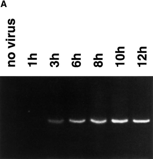 Wp activation early in EBV  infection. (A) Time course of Wp activation. EBV was incubated with resting B  cells and Wp initiated transcription was  evaluated at the designated times by RT  PCR. (B) Effect of calphostin C. Resting  B cells were preincubated with calphostin C (50 nM) for 2 h before EBV addition. 4 h later, transcription of Wp and the  rpL32 housekeeping gene were evaluated by RT PCR.