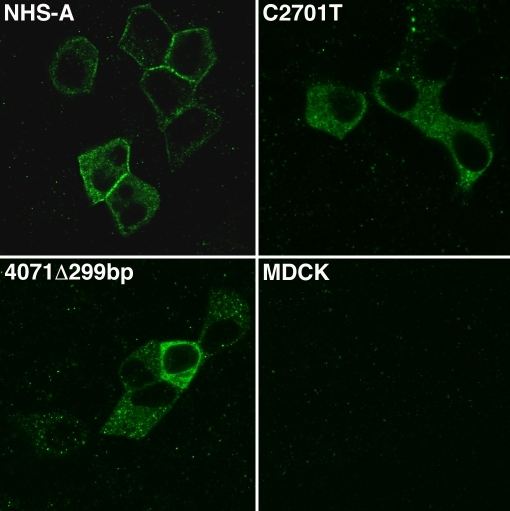 Localization of FLAG-tagged wild type and mutant NHS-A proteins in MDCK cells. MDCK cells stably expressing FLAG-NHS-A, FLAG-NHS-AC2701T, and FLAG-NHS-A4071del299bp proteins and untransfected cells were immunolabeled with an anti-FLAG tag antibody, and labeling was detected by confocal microscopy. Wild type FLAG-NHS-A protein mainly localized to the cellular periphery whereas FLAG-NHS-AC2701T and FLAG-NHS-A4071del299bp mutant proteins localized in the cytoplasm. No non-specific immunoreactivity was observed in untransfected cells. Representative images from four independent experiments are shown. Images were taken with a 60X objective.