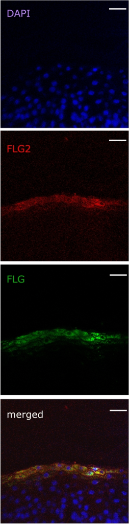 Immunofluorescence localization of FLG2 and FLG in human skin.Skin sections were stained with a mixture of anti-FLG2 and anti-FLG antibody. The images show FLG2-Alexa-Fluor as red while FLG-FITC as green. Nuclear staining was done using DAPI. Comparative localization of FLG2-Alexa-Fluor and FLG-FITC is shown in the merged image. Scale bars, 30 µm.