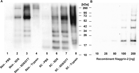 Western blot analysis of filaggrin-2 in human skin.(A) Total proteins were individually extracted from SC and abdominal epidermis, separated on an SDS-10% PAGE and blotted on a nitrocellulose membrane. The FLG2 protein was detected by using purified goat anti-FLG2 polyclonal antibody and HRP-conjugated mouse anti-goat IgG as the second antibody. Proteins were extracted sequentially from abdominal epidermis with PBS buffer (lane 1), SDS buffer (62.5 mM Tris, 10% glycerol, 5% SDS) (lane 2), and SDS/DTT buffer (SDS buffer plus 10 mM DTT) (lane 3), and from trypsin-digested skin sample (lane 4); alternatively, proteins were sequentially extracted from SC with PBS buffer (lane 5), SDS buffer (lane 6) and SDS/DTT buffer (lane 7), and from trypsin-digested SC sample (lane 8). In all other lanes, 5 µl of protein extracts were loaded. The approximate size of the protein was determined using high-molecular-weight standards. The experiment was performed twice and a representative example is shown. (B) As a control, Western blot analysis of the purified recombinant FLG2 with a theoretical monomolecular mass of 15.66 kDa was performed under the same assay conditions. Different amounts of protein were loaded as indicated. The ladder-like bands appeared with higher amounts of protein.