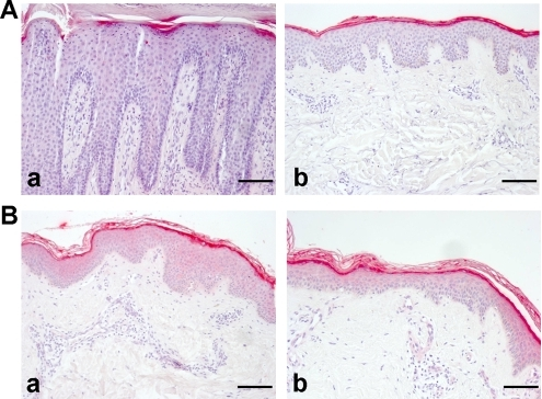 Immunohistochemical analyses of filaggrin-2 expression in skin lesions of psoriasis and atopic dermatitis.Skin biopsies from affected and non-affected sites (upper back) on patients with psoriasis or atopic dermatitis (AD) were stained with anti-FLG2 antibody. A) panel a, lesional psoriatic skin; panel b, non-lesional psoriatic skin; B) panel a, lesional AD skin; panel b, non-lesional AD skin. Representative results of three different patients of each group are shown. Scale bars, 60 µm.
