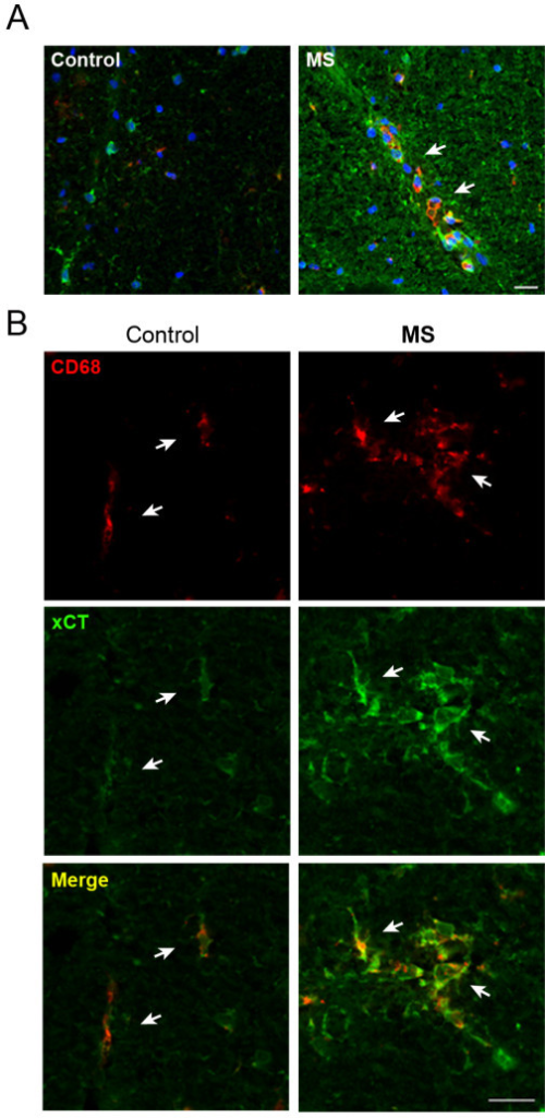 xCT expression is enhanced in CD68+ cells from MS spinal cord. A. Triple immunofluorescence staining for xCT (green), CD68 (red) and Hoechst 33258 (blue) in spinal cord of control (left) and MS patients (right). A high expression of xCT was detected in CD68+ infiltrating macrophages (arrows) associated with blood vessels, which are virtually absent in controls. Note that overall xCT expression is enhanced in MS tissue. B. CD68+ cells (arrows) show enhanced xCT expression in MS patients as compared to controls. CD68+ macrophages are round shaped and form clusters in MS patients, whereas in controls, CD68+ cells appear isolated and long shaped. Scale bar = 50 μm.