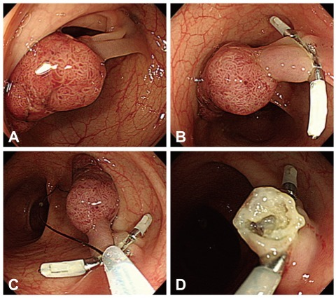Pedunculated Polyp Endoscopic snare polyp...